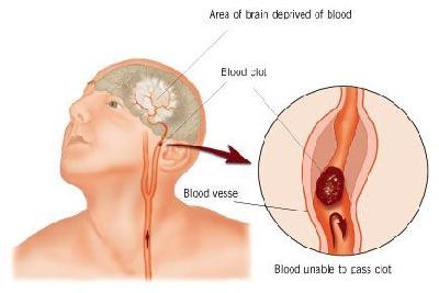 Left carotid artery embolic stroke to left brain.