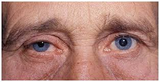 Right Horner syndrome with slight lid droop and pupillary smallness.