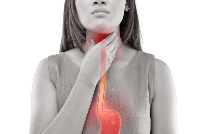 Gastric reflux—heartburn