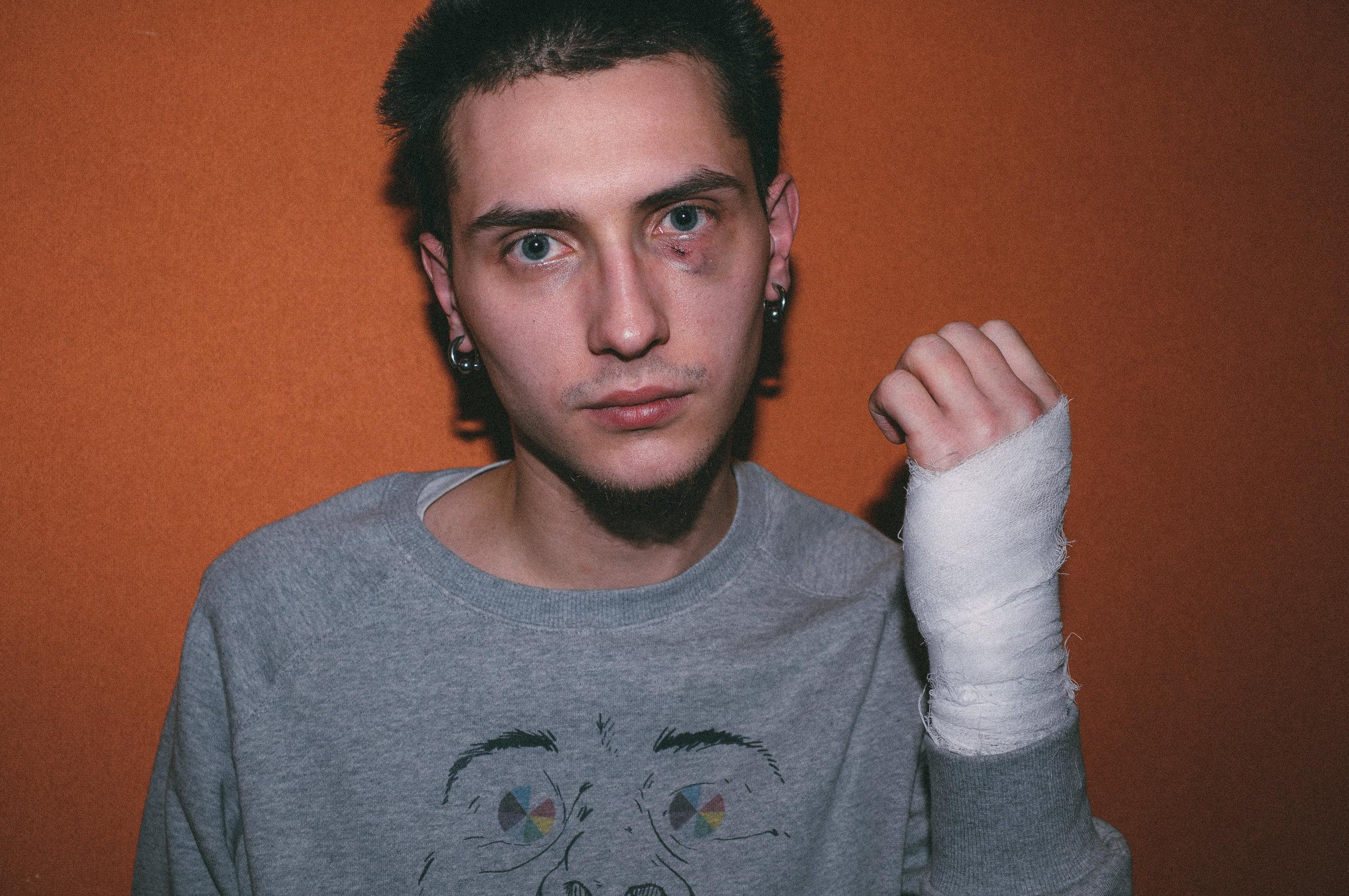Anatoli Ulyanov after the second attack (March 13, 2009) / Photo by Natasha Masharova