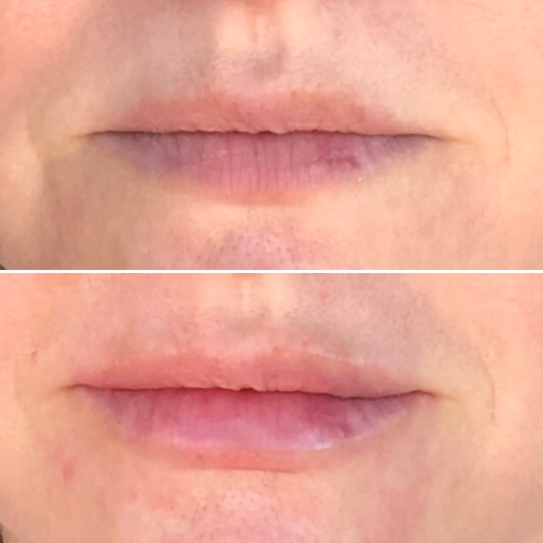 M. Hossle Lip Injections - Close Up.png