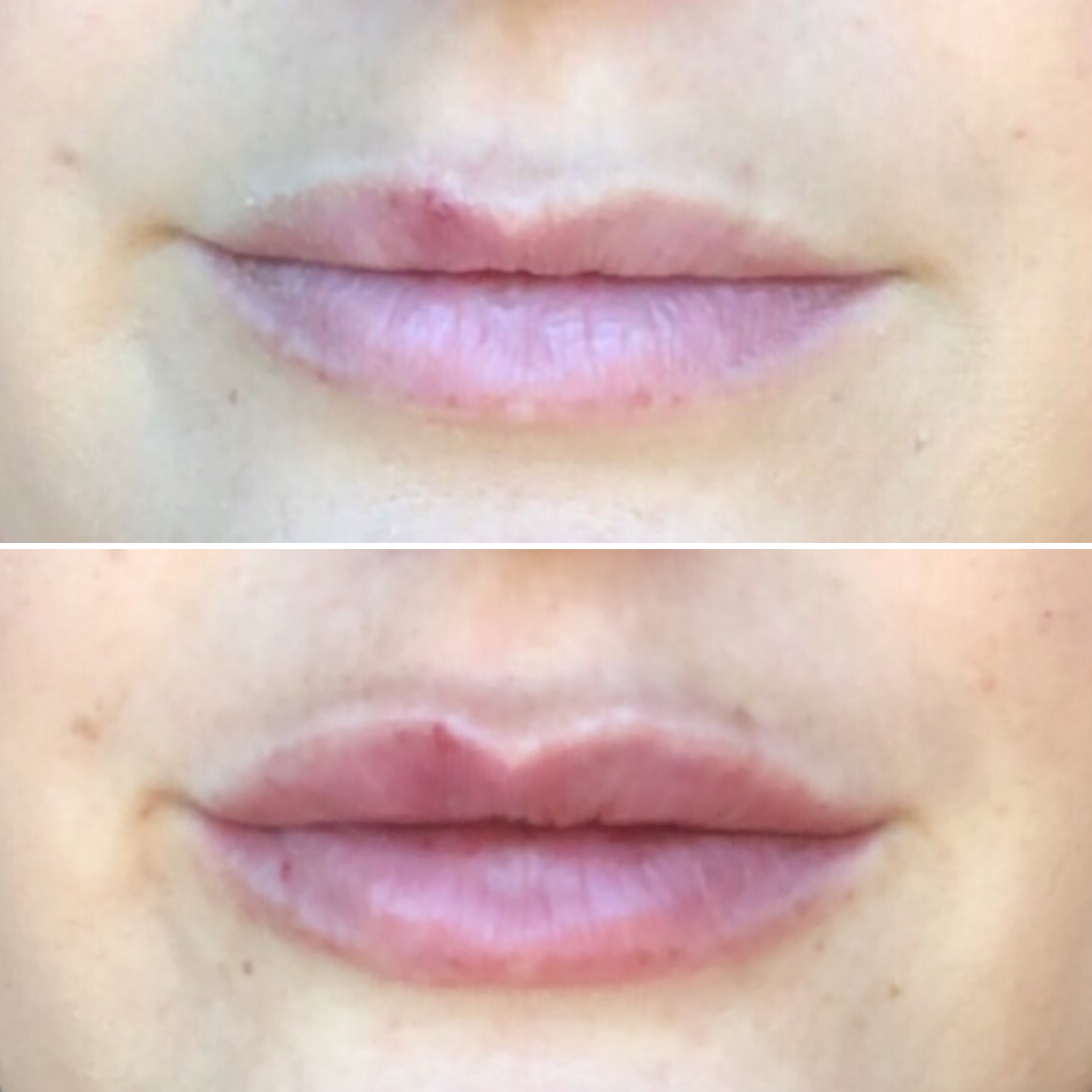 K. Stoeser Lip Injections - Close Up.png