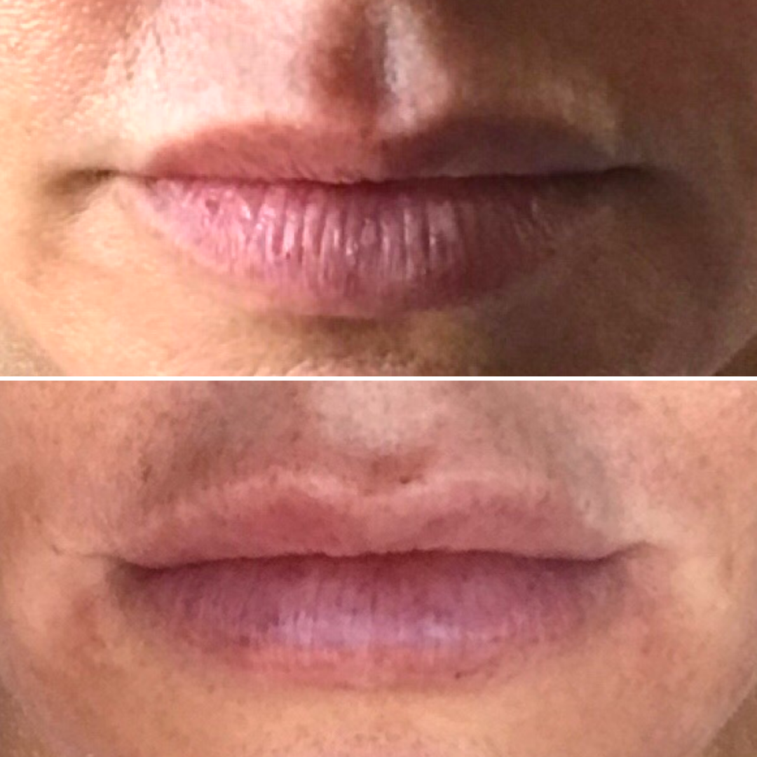 T. Campbell Lip Injections - Close Up.png