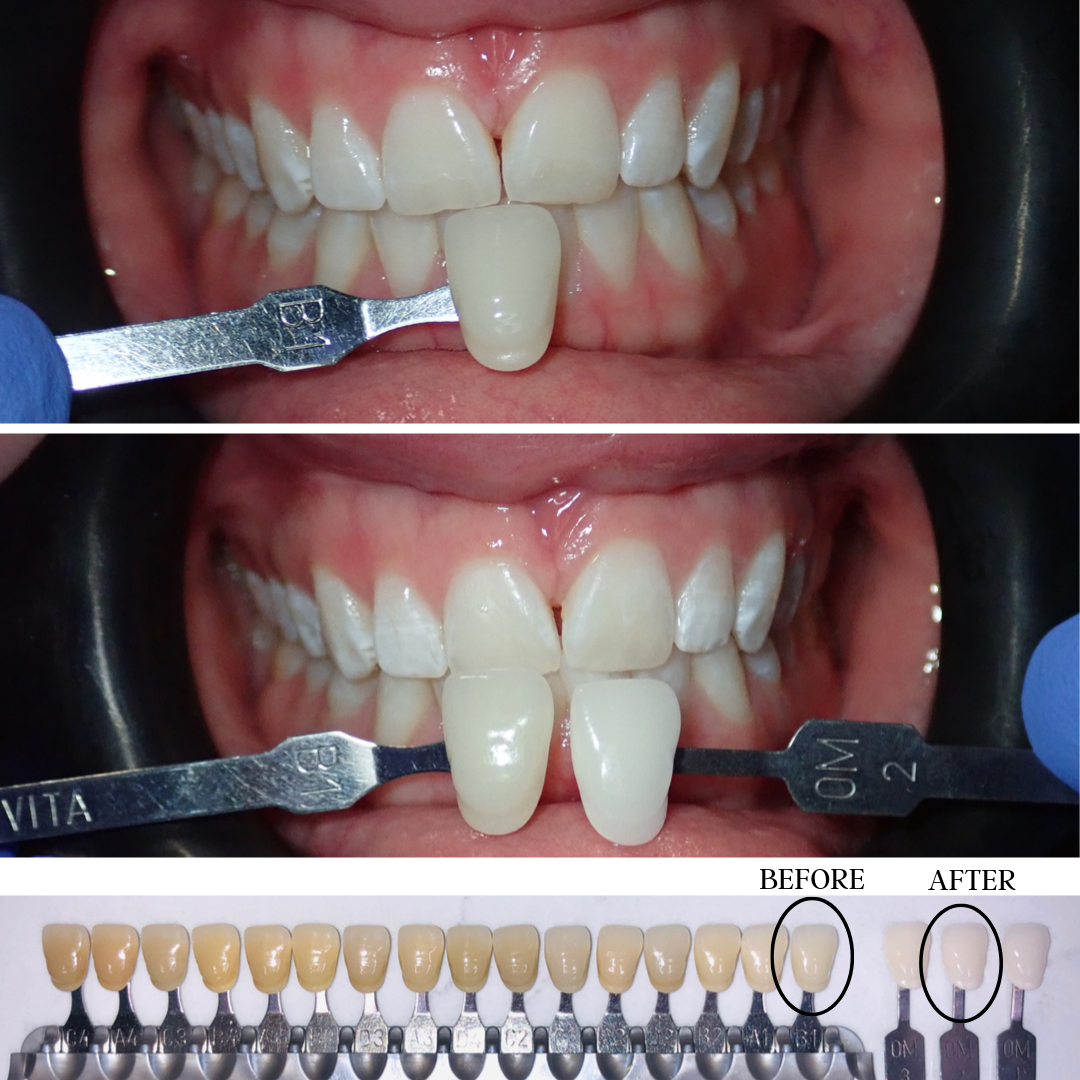 Teeth Whitening Sioux Center Dental