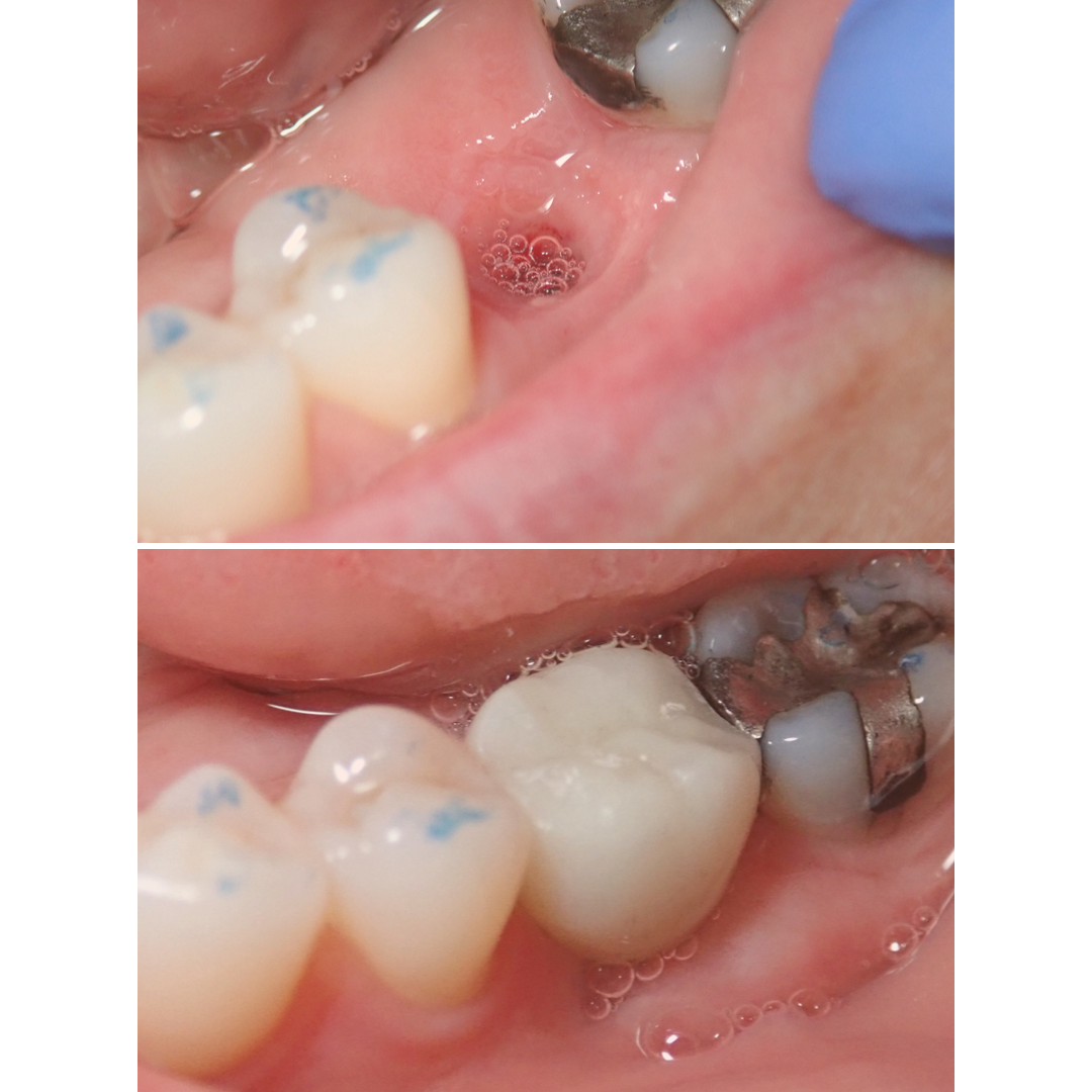 M. Alesch Implant.png