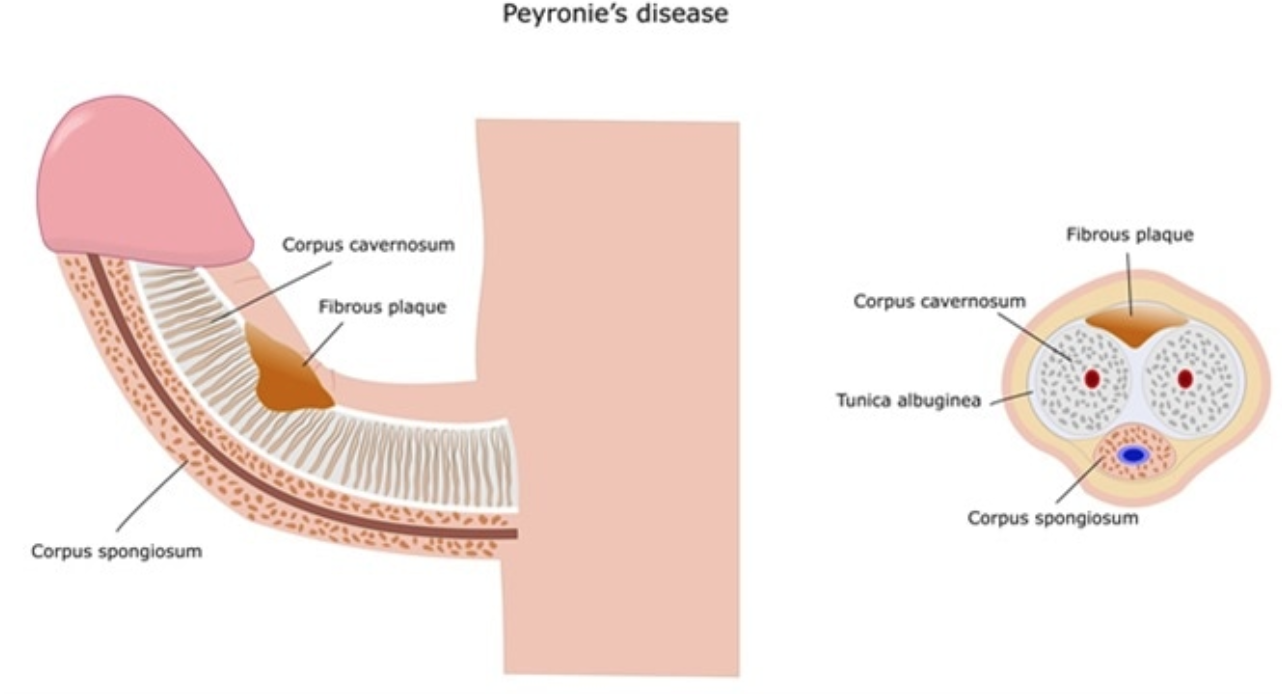 Peyronies Plaque.png