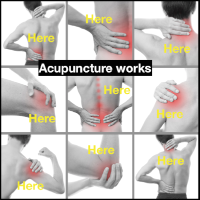 Acupuncture is  extremely  effective for acute and chronic pain management.