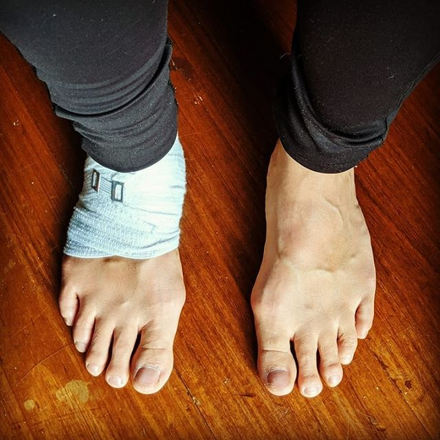 This past week has been a humbling experience... Rolled my right ankle, and my foot has taken on some interesting shades in blue! Thankfully nothing is broken but have been walking, moving and teaching with more care and discernment. I forgot to mention this in my latest Spring Newsletter (link in Bio). . . My yoga practice has taught me to respect my limits and that it is okay for one side/foot/leg/hip/etc to do something completely different compared to the other side. Don't need to push push push. Or force myself to do any movement, shape or do anything that is not right for me. . . In this moment, choosing with discernment, choosing using inner enquiry, choosing the best thing for me right now. That self awareness and self observations is a yogic superpower 😁. Doing @theoptimalstate workshop with Amy Wheeler last month made me realise this. The power of Self awareness developing your introception skills allows you to pick up warning signs (messages from your body/breath/mind) EARLIER! It's so easy to get out of whack, to get out of balance. The earlier you notice when you are off centre the easier it is to know how to get yourself back in the gold zone, and operate from a calm & clear state in your mind & body. . . So I rolled my ankle playing indoor soccer  last week. I love playing sport. I love being part of a team. (It's my only form of cardio during the week! 🤣) Often people first assume it's from yoga. But I can't imagine my yoga practice ever causing me harm. It's the only thing I do where I'm completely present and in my body moving mindfully with self awareness. There shouldn't be any pain in yoga. Pain shouldn't be ignored or seen as something to push past. It should be seen as a red light, a direct message from our body to stop! . . If you are doing 'yoga' and you injure yourself I question whether you are practicing 'yoga'. You may need a teacher to point you in the direction of exploring some fundamental yogic philosophy around the yamas and niyamas (inner values / social principles), particular around ahimsa (non-violence / kindness). Living, moving, thinking, breathing with ahimsa as the foundation to every action you take. . . #yoga