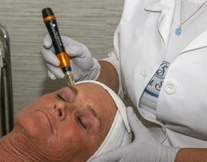 Microneedling Treatment CustomizedSkincareSpa.jpg