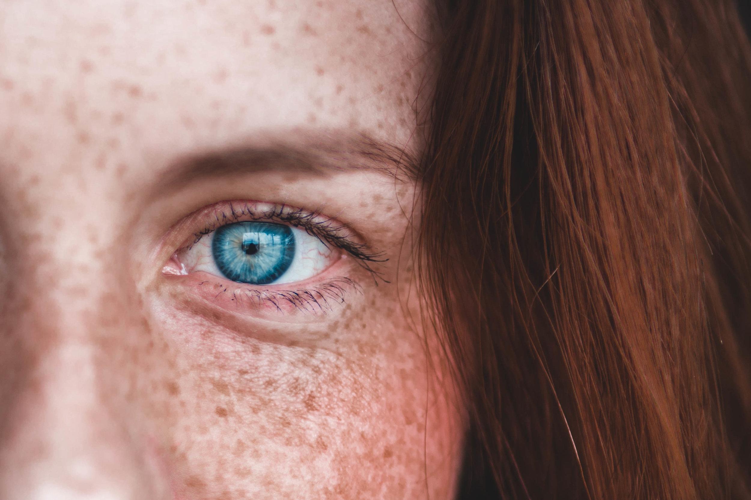 Risikogruppe: Frau mit vielen Sommersprossen