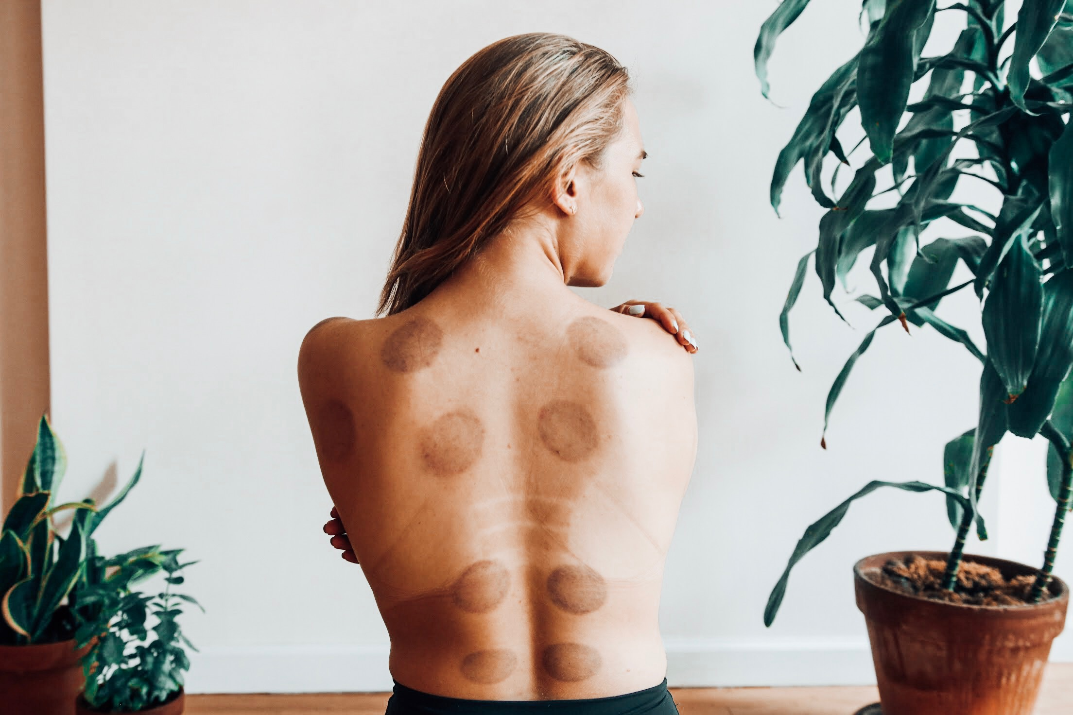 cuppingtherapy.JPG