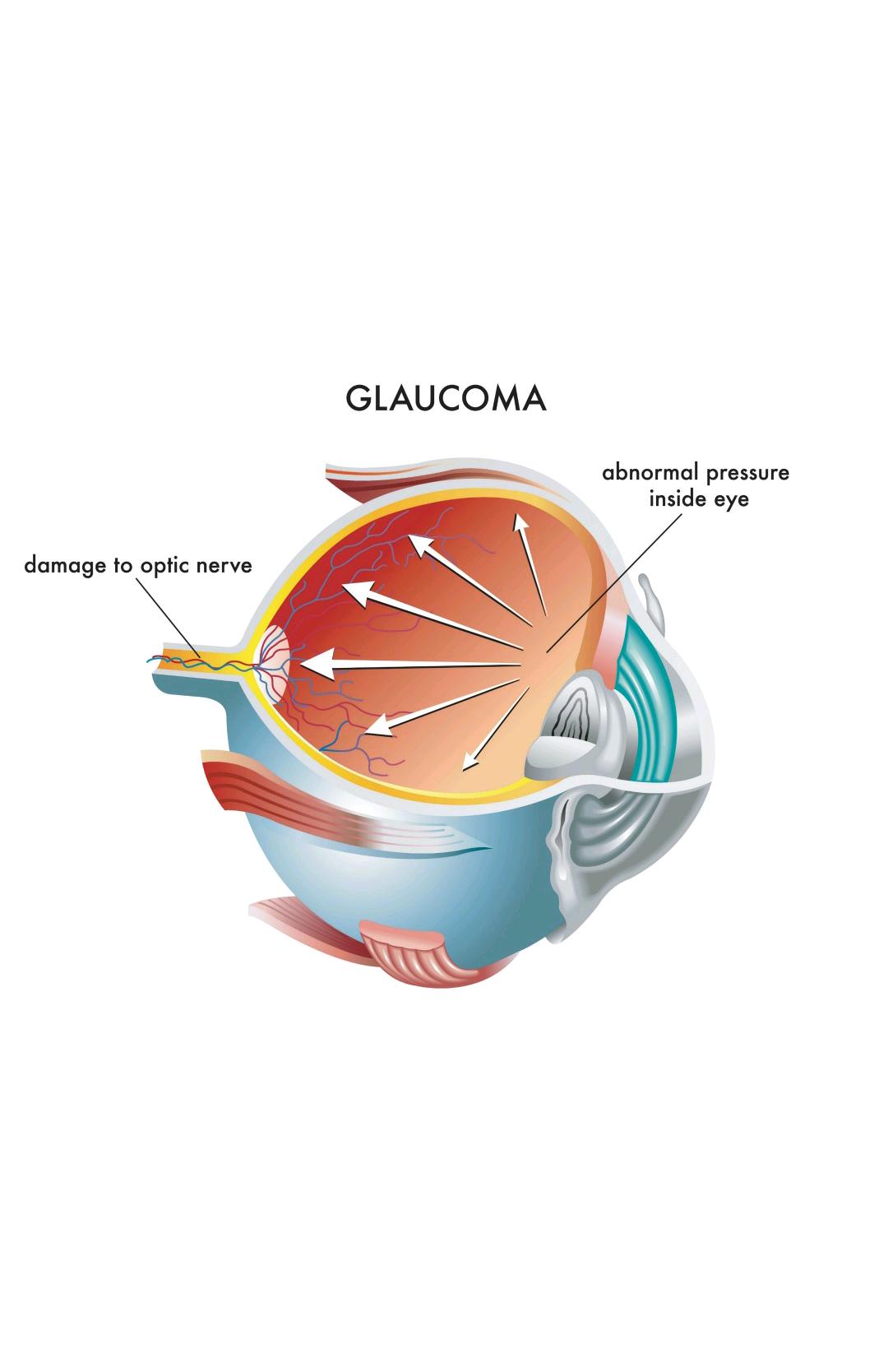 glaucoma diagram.png