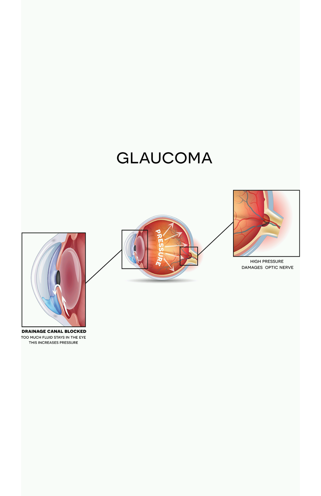 glaucoma visual.png