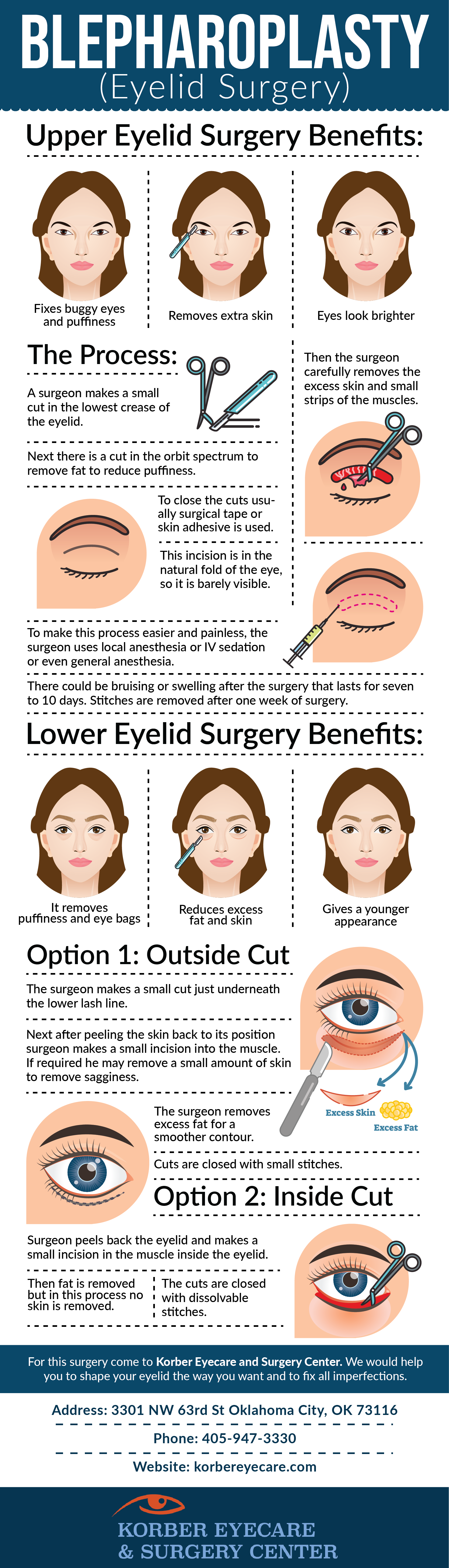 eyelid surgery okc-Infographic.png