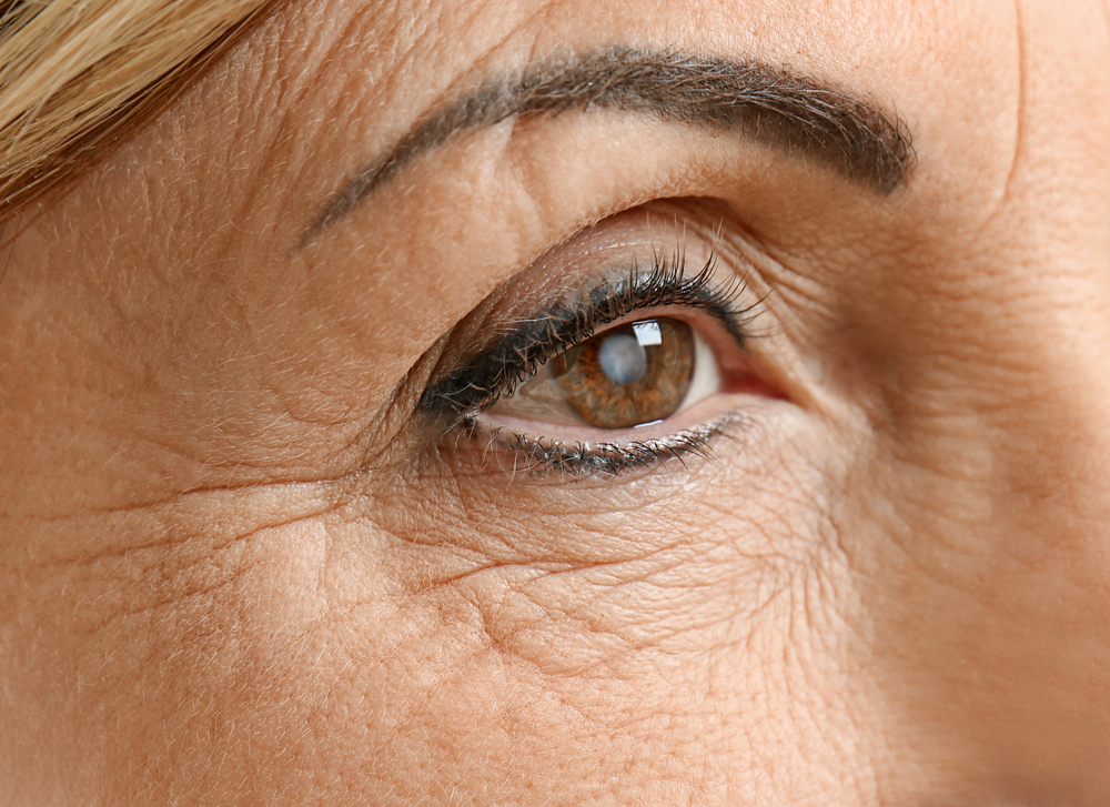 best cataract surgeons okc.jpg