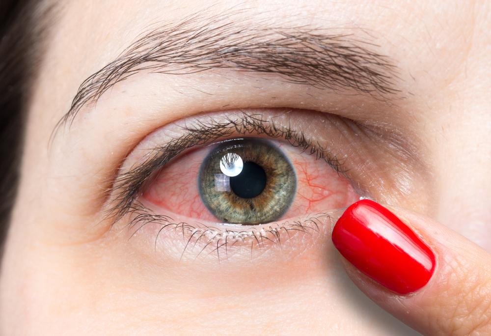 Conjunctivitis or Pink Eye.jpg