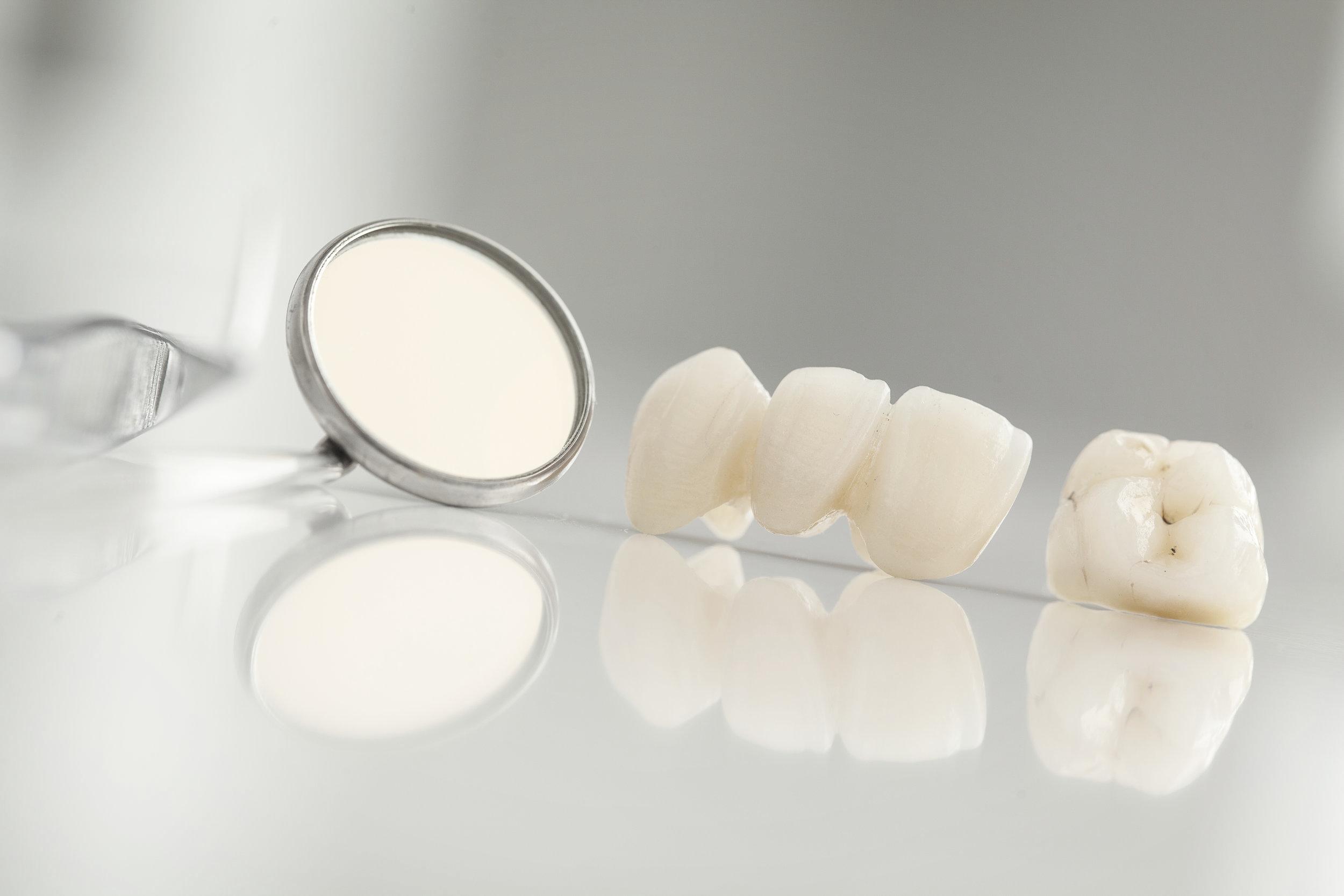 Dental Crowns in dental tray