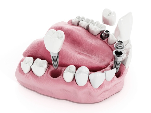 3D model showing how dental implants replace missing tooth roots and securely hold dentures and bridges in place
