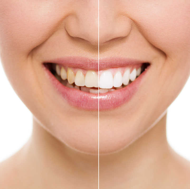 Close-up of lady's teeth showing before and after teeth whitening treatment