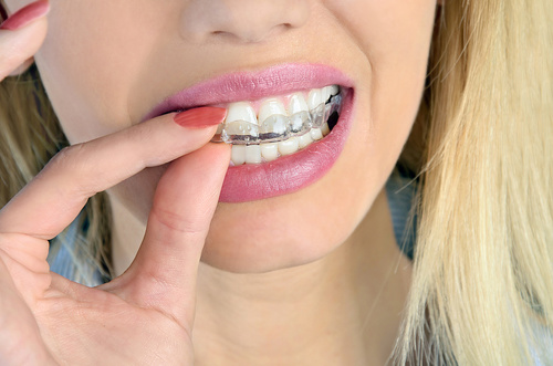 Close-up of young lady using home teeth whitening trays