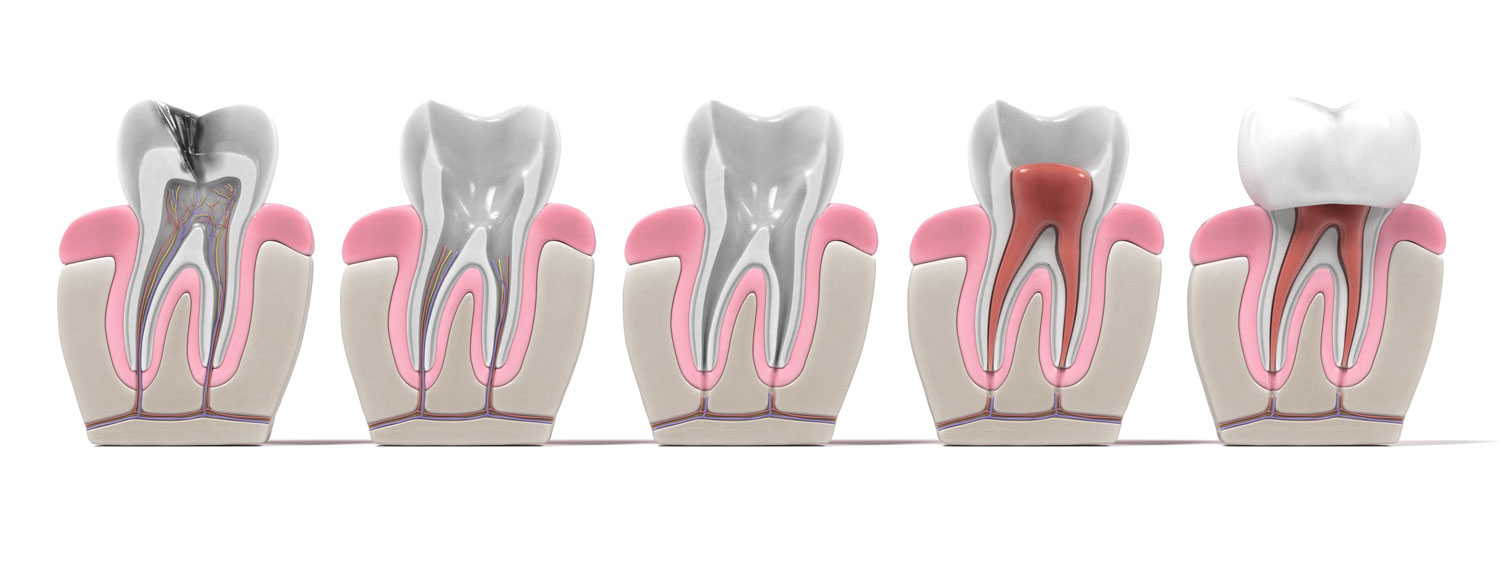 3D render of how a root canal affects your tooth over time