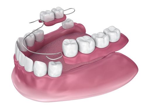 Close-up 3D model of partial denture