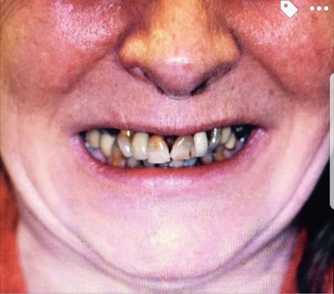 Implants Case Study 4 - Before