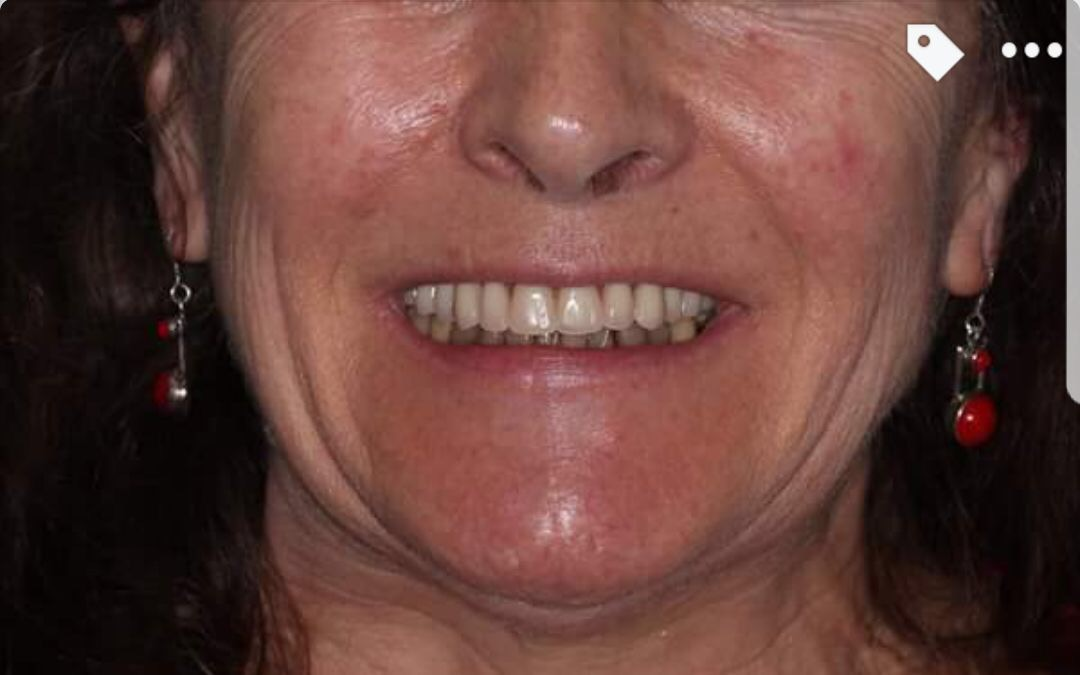 Implants Case Study 4 - After