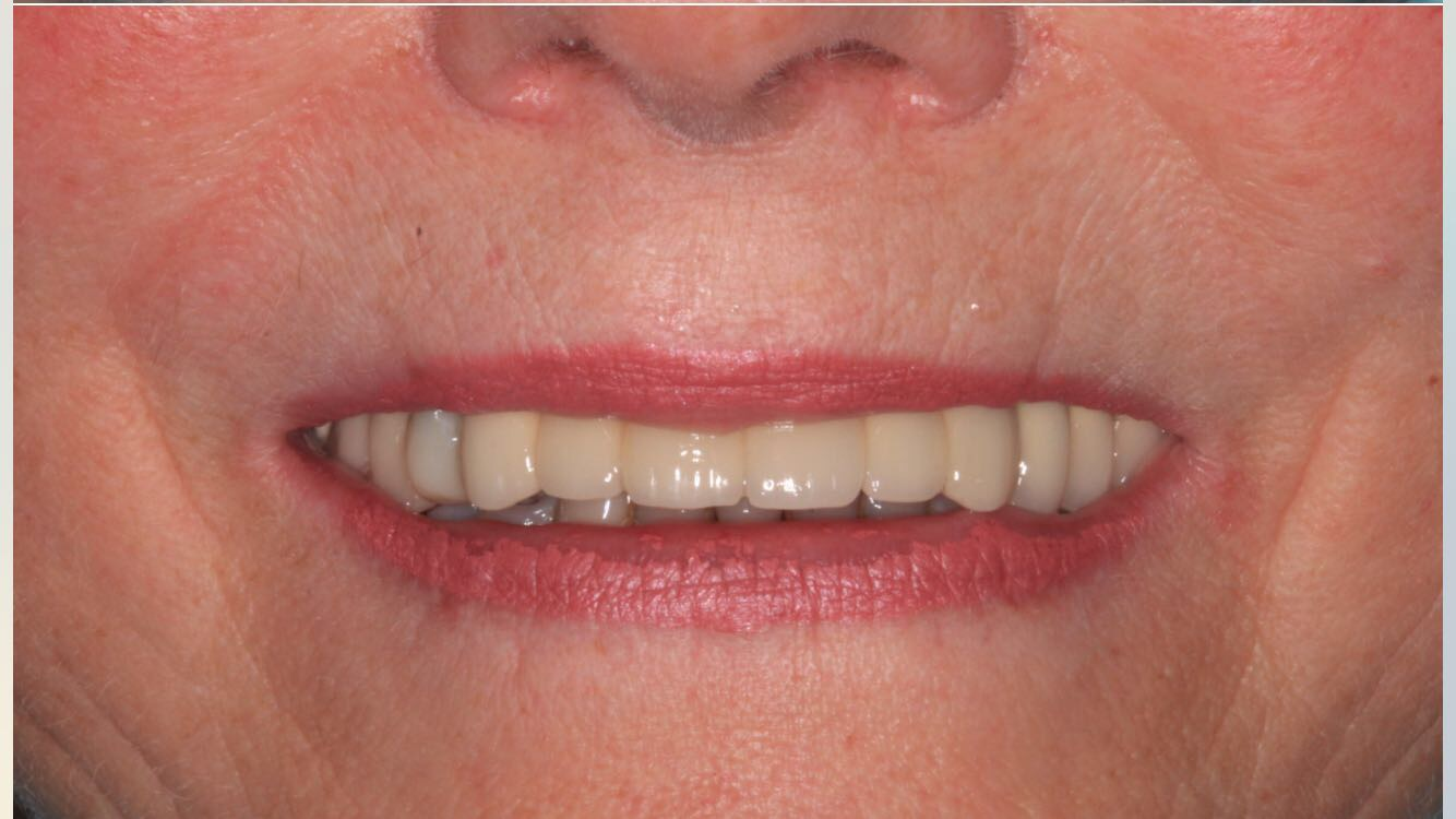 Implants Case Study 5 - After