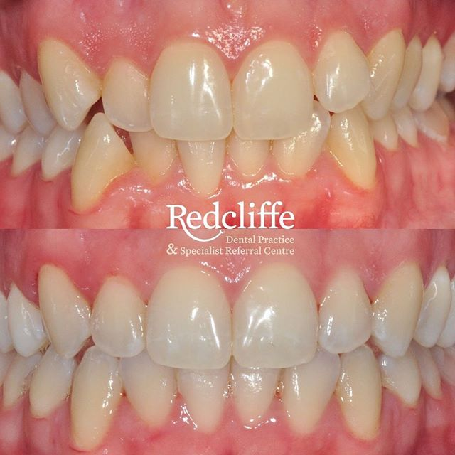 Another lovely @Invisalign_UK case by @dr_thomas_hickley_redcliffe • • • 📞 01513363012 ✉️ reception@redcliffedental.com 🙌 We offer free consultations 💰 Payment plans available  #smile #invisalign #invisalignUk #quickstraightteeth #sixmonthsmiles #instasmile #dentist #dentistry #invisiblebraces #compositebonding #composite #toothwhitening #teethwhitening#cosmeticdentist #cosmeticdentistry #whiteteeth #familydentist #merseyside #wirral #cheshire #chester #liverpool