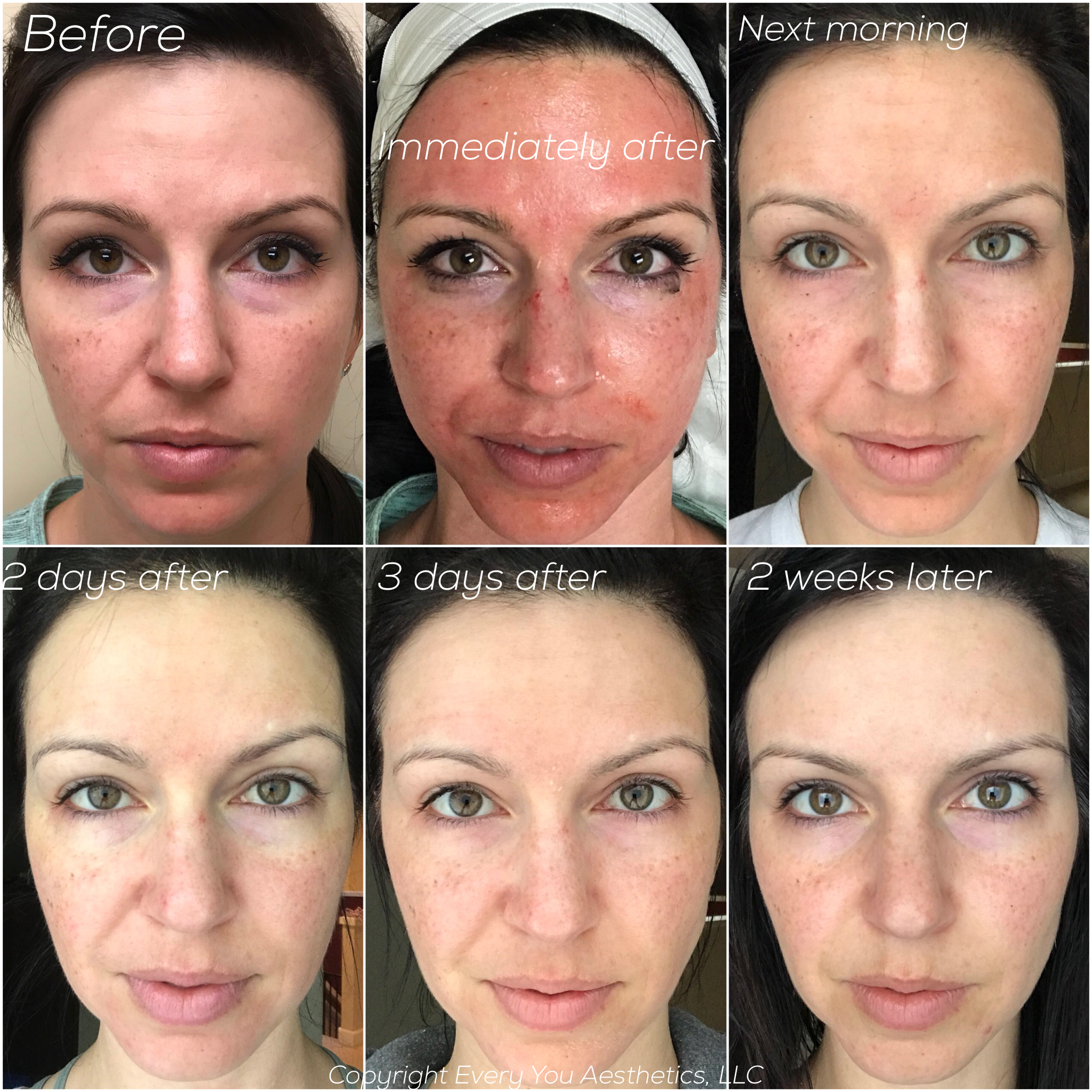 After first Microneedling Facial with PRP upgrade, 2 more still needed for full treatment. Notice improved under eye bags and smile lines, lightened sun spots, brighter skin.
