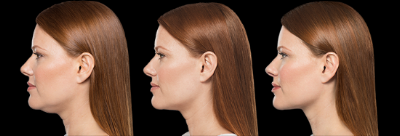 Kybella - Before...After 2 treatments...After 3 treatments