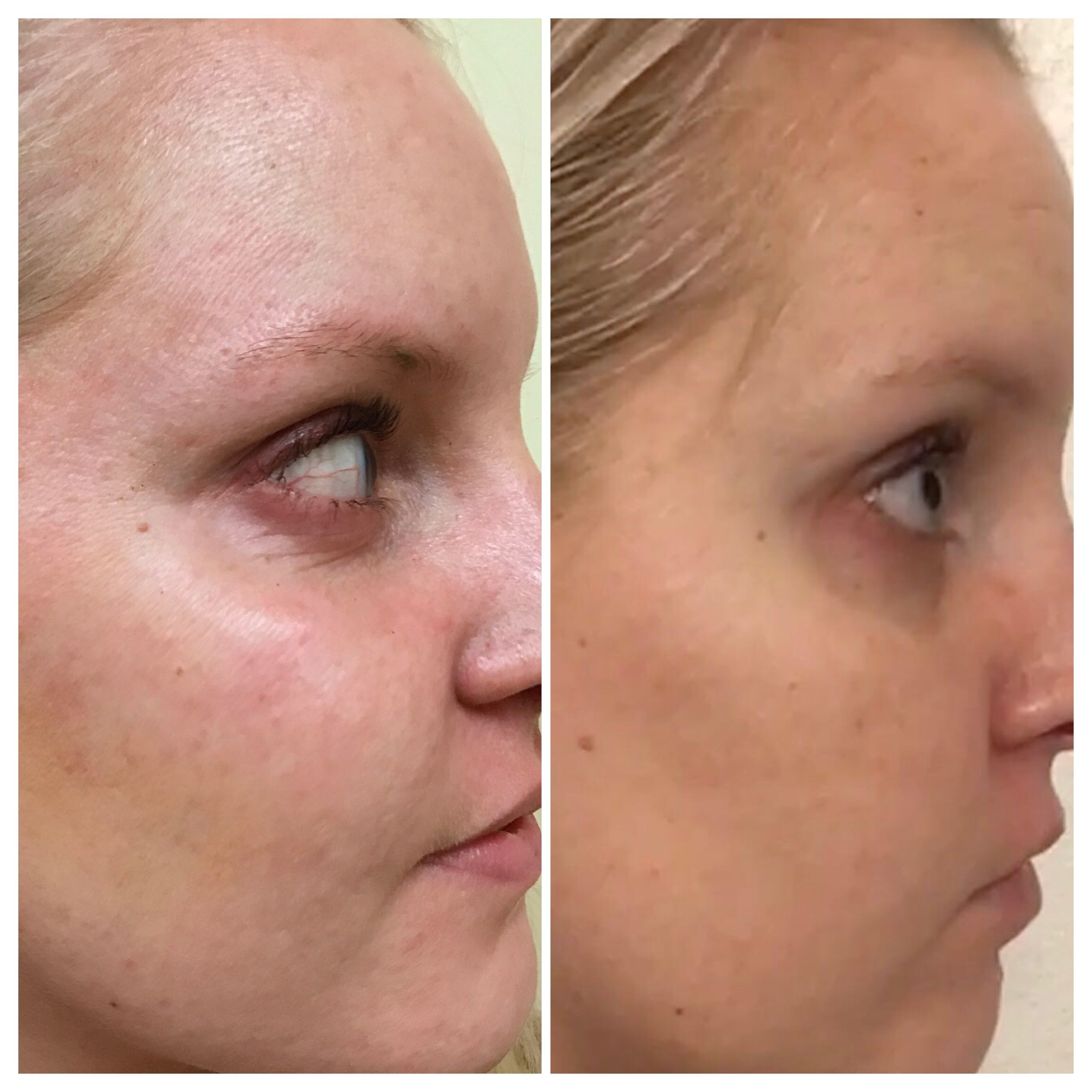 Microneedling with PRP, 2 weeks later