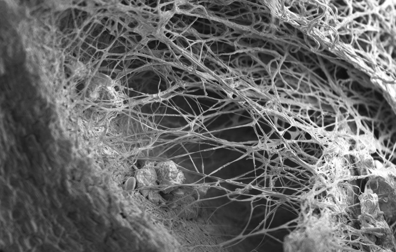 Hyphae-and-Mycelia.png