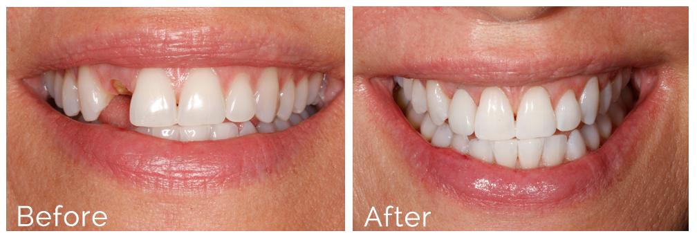 dental-implants-before-after-atlanta-ga.jpg