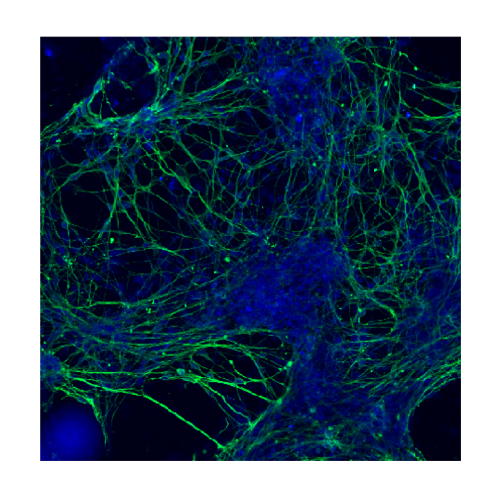 Neurons send messages along their axons, pictured here in green, to neighbouring cells in the brain and on to the rest of the body [Image courtesy of  Rachelle Balez , PhD candidate, University of Wollongong]