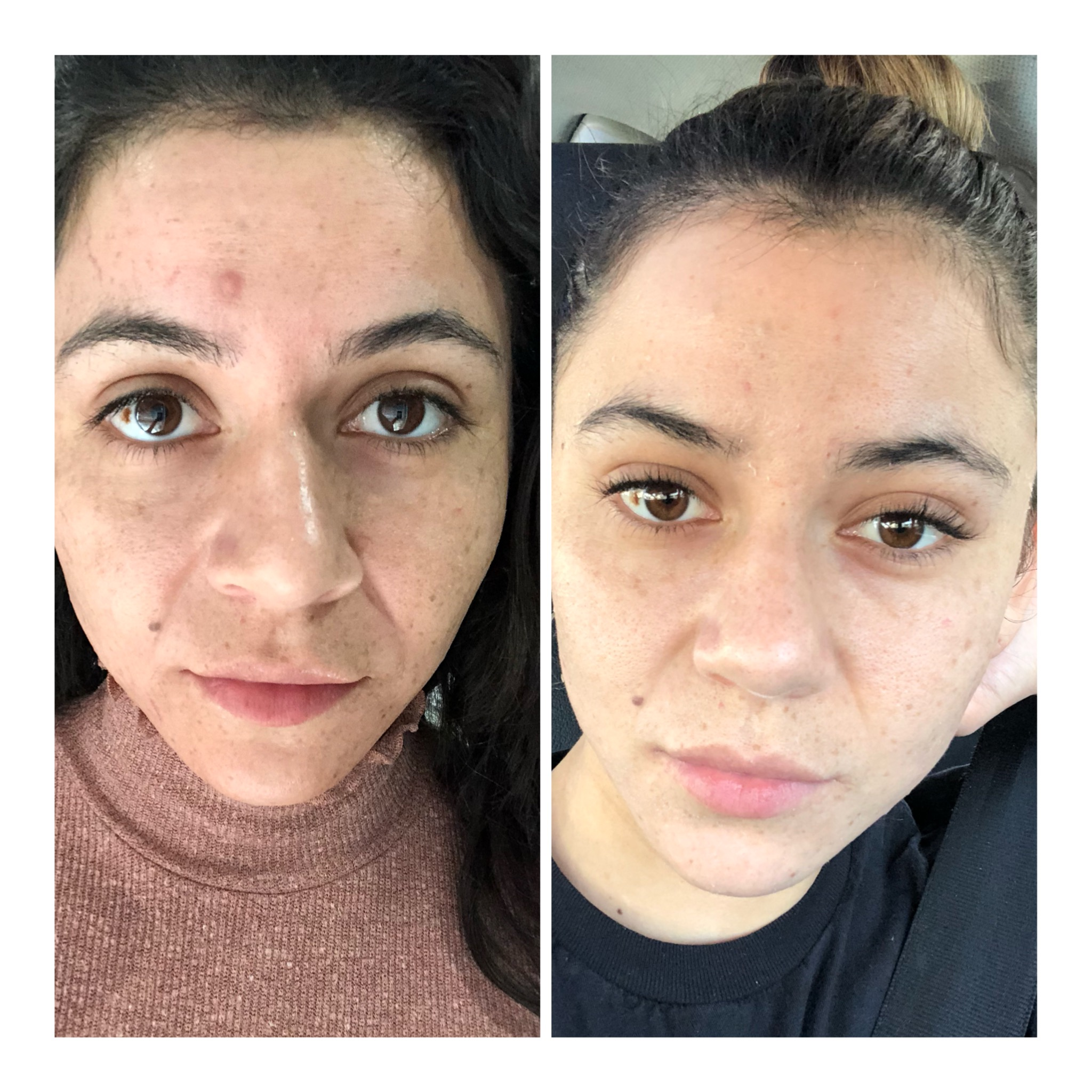 Yesenia - after second appointment