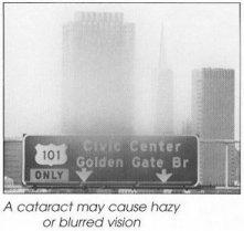 cataract2.jpg