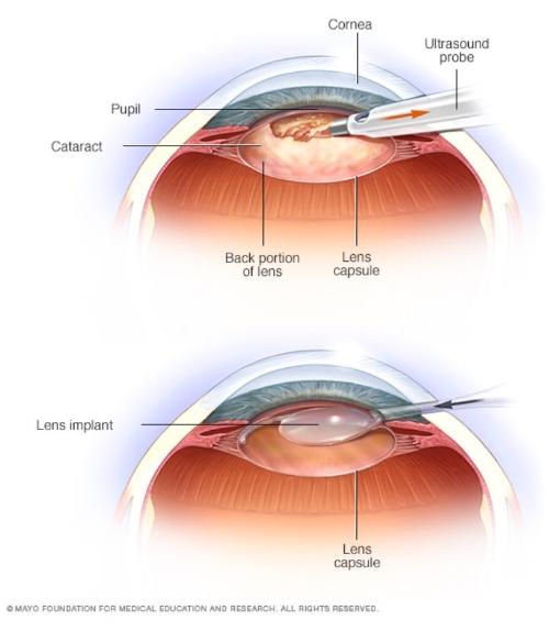 Cataract Surgery.jpeg
