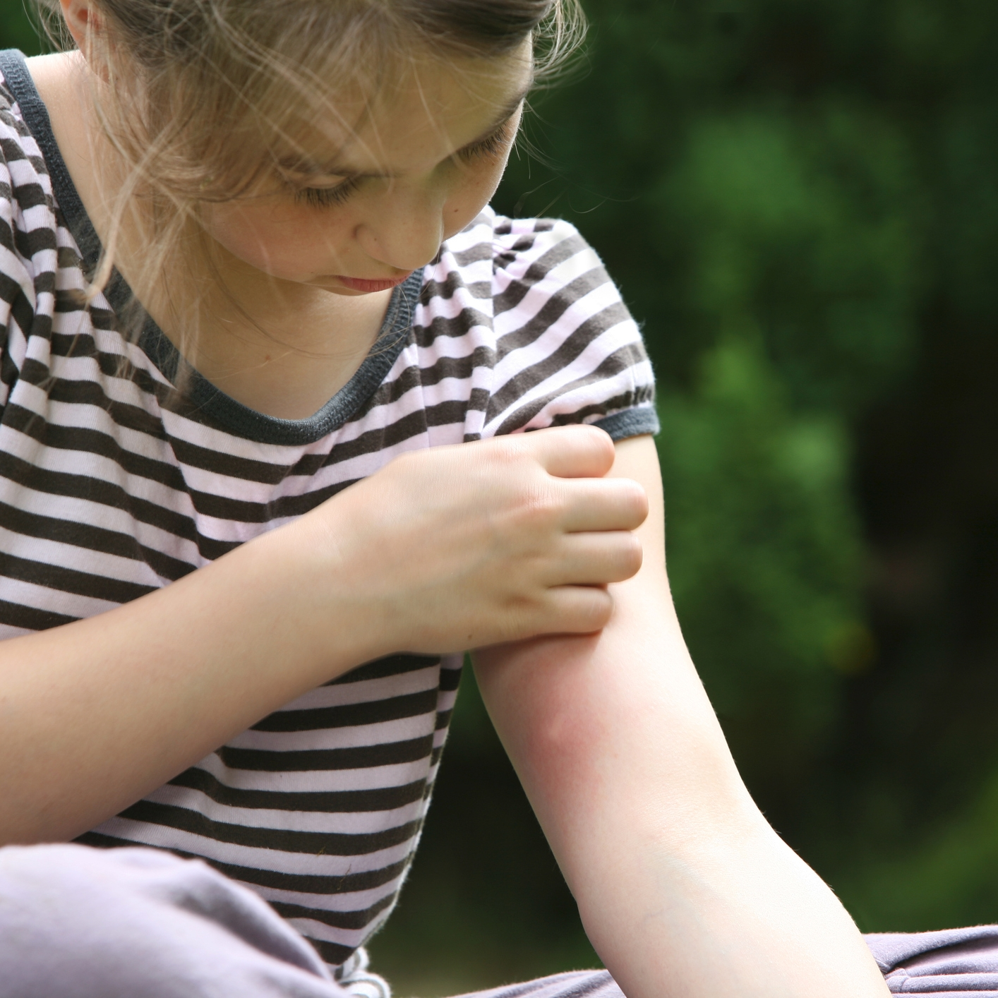 FIRST AID - Get natural relief for itchy skin, bug bites, inflammation, bruising, sprains and contusions with natural oils, homeopathetic gels, salves and balms.
