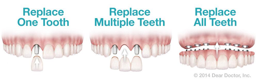 Dental Implant 3.jpg