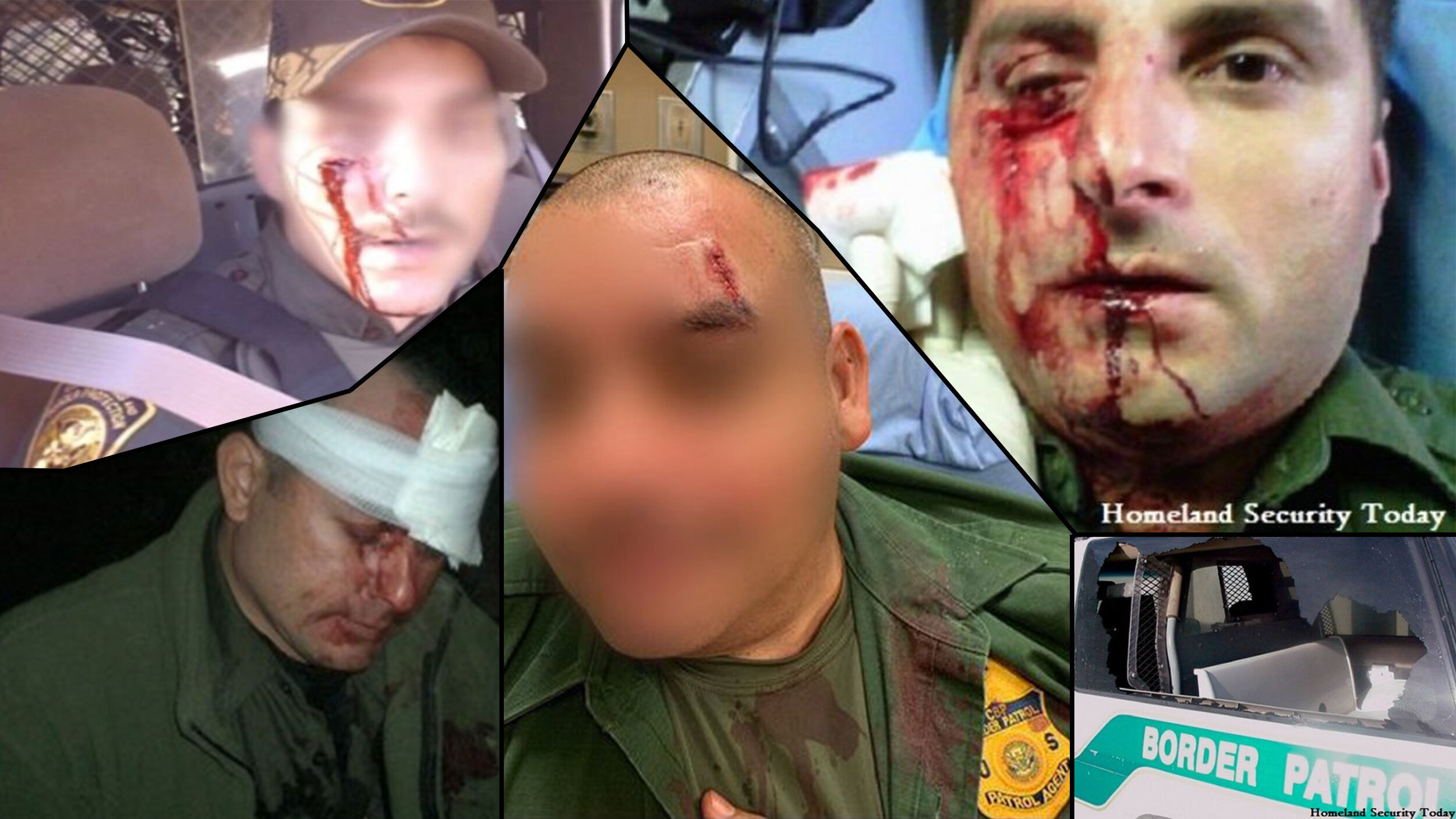 Photos of border agents injured over the years 2006-2019. Illegals are known to assault and throw rocks at our Border Patrol, breaking vehicle windows and causing significant head injuries.   SOURCES: ( Breitbart , 2014) Graphic Images Justify Border Patrol's Use of Deadly Force Against Rock Attacks; ( 10News , 2019) Border Patrol agent injured after rock thrown at patrol car, via  CBP El Centro Twitter , 2019