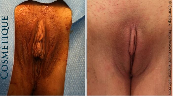 labiaplasty cosmetique before and after.JPG