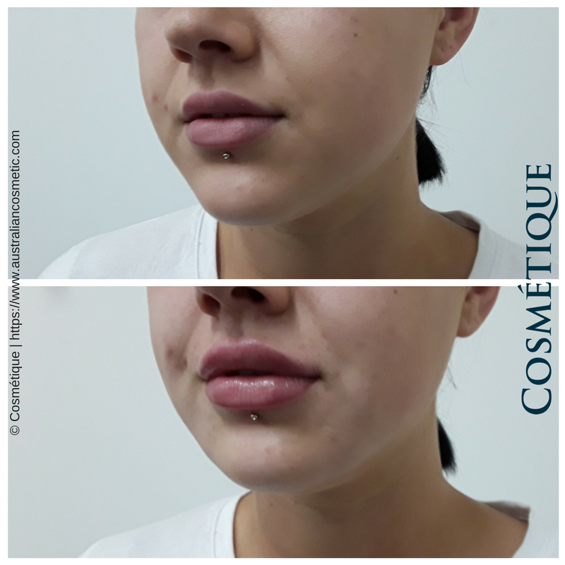 COSMETIQUE LIP FILLER BEFORE AFTER 036.png
