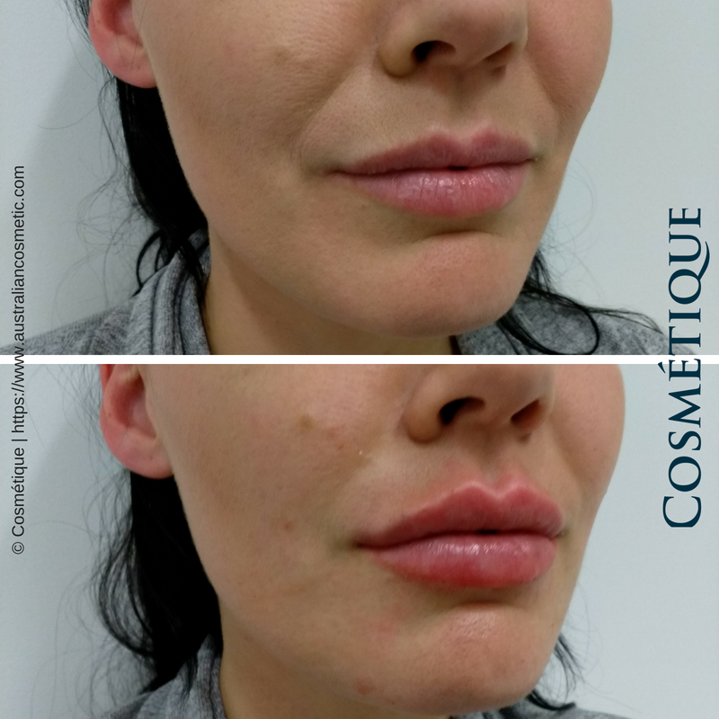 Lip Injections | Lip Fillers Perth, Brisbane, Melbourne
