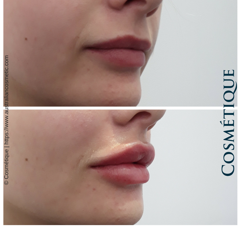 COSMETIQUE LIP FILLER BEFORE AFTER 037.png
