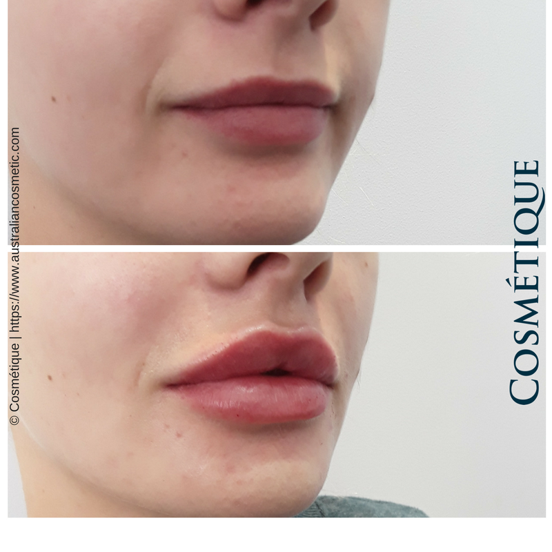 COSMETIQUE LIP FILLER BEFORE AFTER 039.png