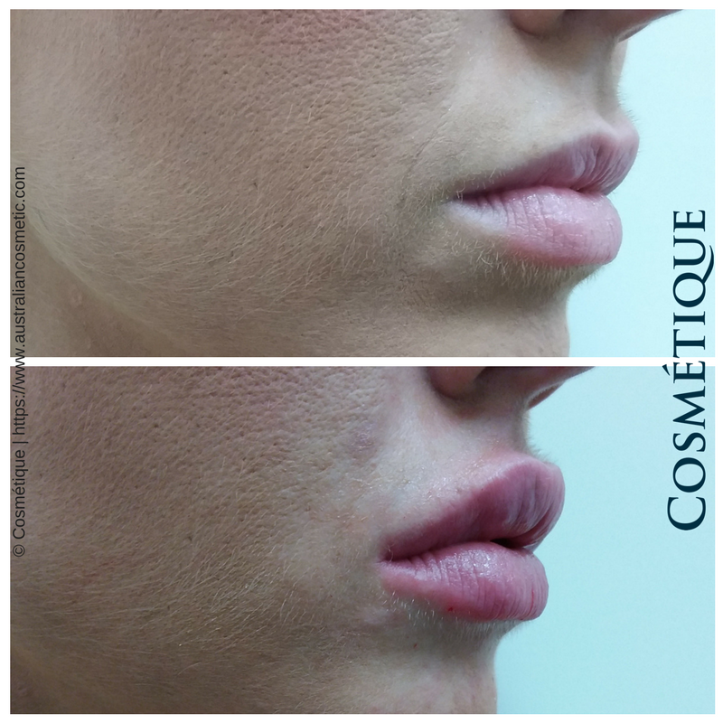 COSMETIQUE LIP FILLER BEFORE AFTER 041.png