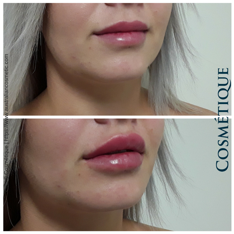 COSMETIQUE LIP FILLER BEFORE AFTER 042.png