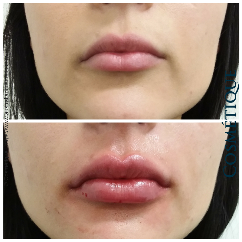 COSMETIQUE LIP FILLER BEFORE AFTER 043.png